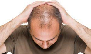 calvície/queda de cabelo ()