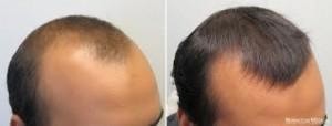 finasterida calvície/queda de cabelo antes e depois